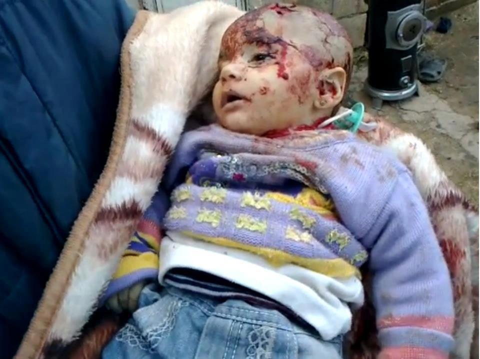 bambino morto syria